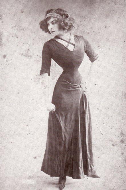 Lý do người đàn bà Pháp có eo nhỏ 40cm bị chê xấu nhất thế giới Ảnh 2