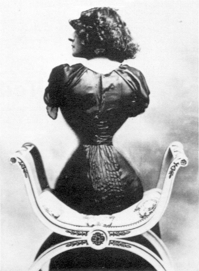 Lý do người đàn bà Pháp có eo nhỏ 40cm bị chê xấu nhất thế giới Ảnh 5