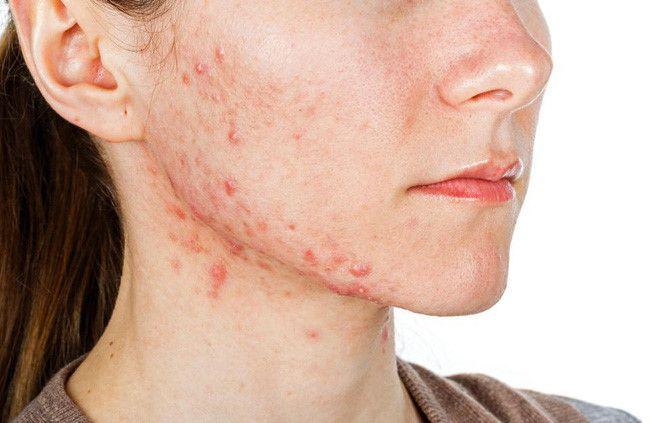 Đây là 5 tín hiệu chứng tỏ cơ thể đang cố gắng muốn nói rằng bạn đang bị bệnh, đừng lơ là bỏ qua Ảnh 2