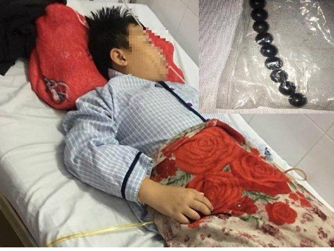 Bé trai 10 tuổi hoại tử ruột vì nuốt 9 viên bi nam châm Ảnh 1