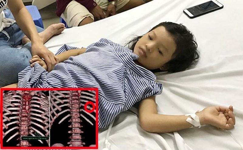 Bé 7 tuổi bị đạn lạc xuyên thấu ngực Ảnh 2