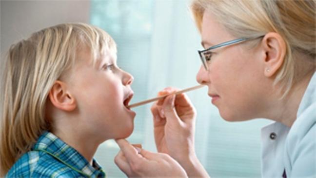 Viêm Amidan: Căn bệnh thường gặp ở trẻ em và cách điều trị Ảnh 3