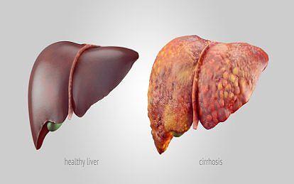 Khi nào người mắc bệnh gan không còn cơ hội cứu chữa? Ảnh 1