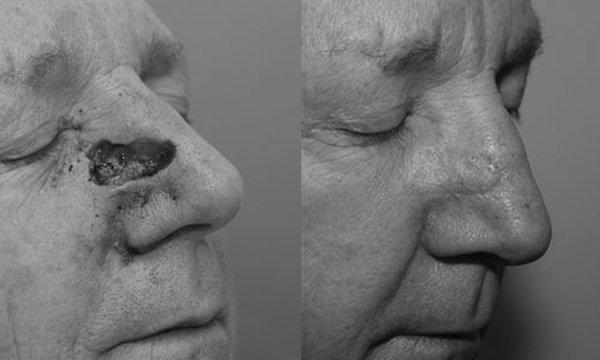 Ngôi sao cầu lông thế giới 36 tuổi mắc ung thư mũi Ảnh 2