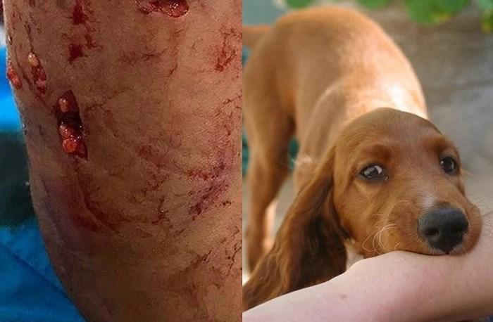 Cháu bé 4 tuổi bị chó nhà cắn trọng thương ở cổ Ảnh 1