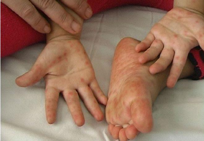 Bệnh tay chân miệng tăng gấp 5: Chỉ đạo khẩn từ Sở y tế TP HCM Ảnh 1