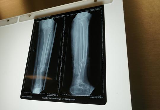 Yêu cầu 'kỳ lạ', người phụ nữ gãy chân bị nhiều bệnh viện từ chối Ảnh 1