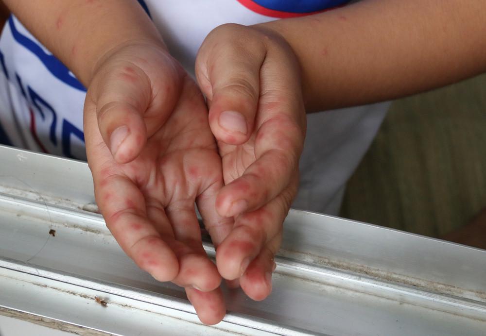 Nguy cơ lây lan bệnh tay chân miệng trong trường học Ảnh 1