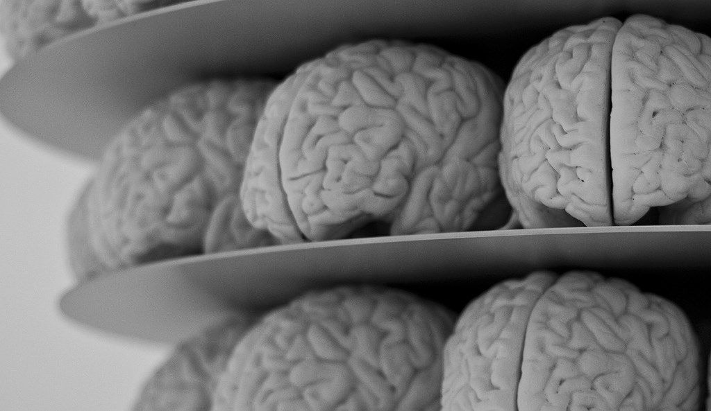 Các nhà khoa học liên kết tín hiệu từ 3 bộ não người và ép chúng chơi game Tetris Ảnh 1