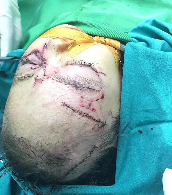 Bé gái 31 tháng tuổi bị chó nhà cắn nát mặt phải nhập viện cấp cứu Ảnh 1