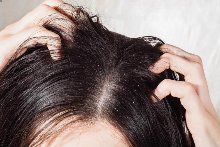 Dấu hiệu trên mái tóc cảnh báo nhiều bệnh lý nguy hiểm mà chị em thường phớt lờ Ảnh 1