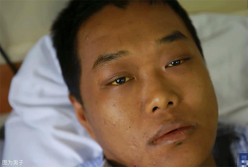 Chàng trai 28 tuổi mắc 16 căn bệnh vì thói quen triệu người mắc Ảnh 1