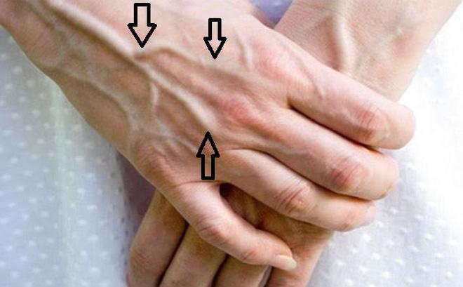 Nổi gân xanh - có thể là dấu hiệu bệnh nguy hiểm Ảnh 1