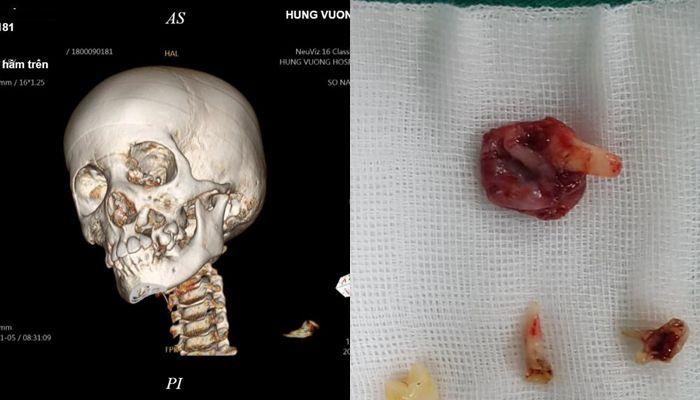 Cháu bé đau răng đi khám, gia đình tá hỏa khi con bị u nang xương hàm Ảnh 1