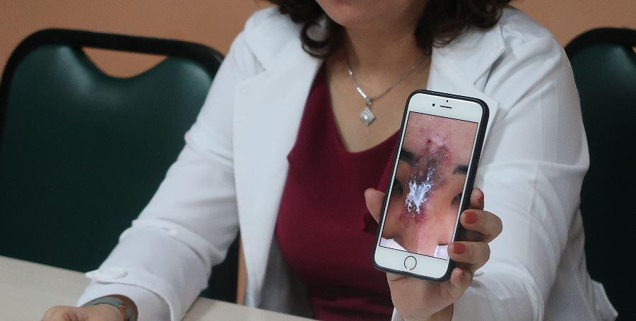 Tiêm filler tại cơ sở chui, nữ sinh viên bị hoại tử mũi Ảnh 1