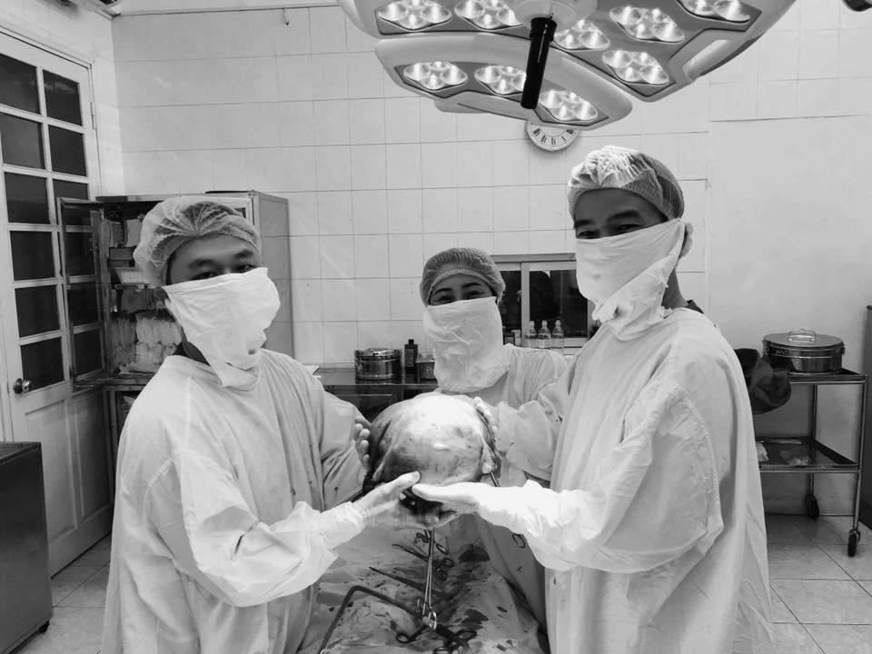 2 tiếng phẫu thuật lấy ra khối u xơ tử cung to như thai 9 tháng tuổi Ảnh 1