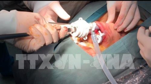 Phẫu thuật nội soi tuyến giáp qua đường miệng không để lại sẹo Ảnh 1