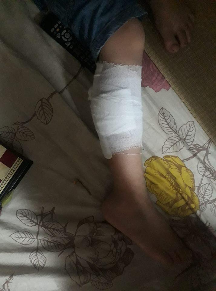 Đang đùa nghịch, bé trai 10 tuổi bị đàn chó nhà hàng xóm tấn công phải nhập viện Ảnh 2