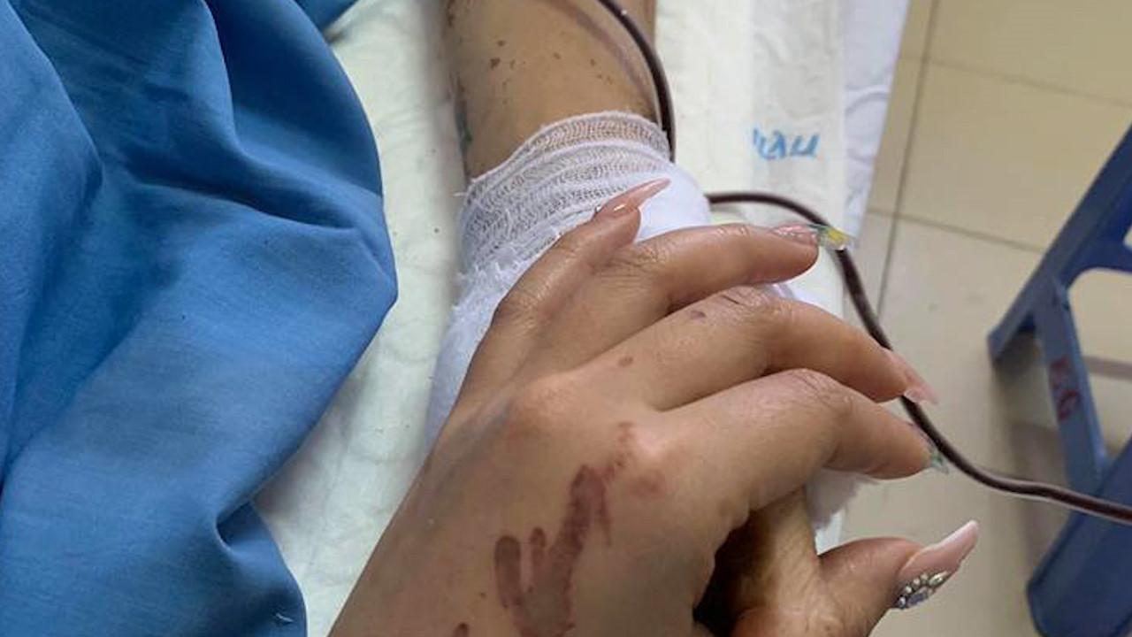 Bạn gái của Việt kiều Canada bị tạt axít: 'Không ai đáng phải chịu bi kịch này' Ảnh 1