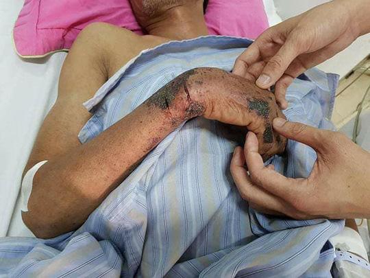 Dịch sởi bùng phát được liệt vào 10 bệnh truyền nhiễm lớn nhất năm Ảnh 2