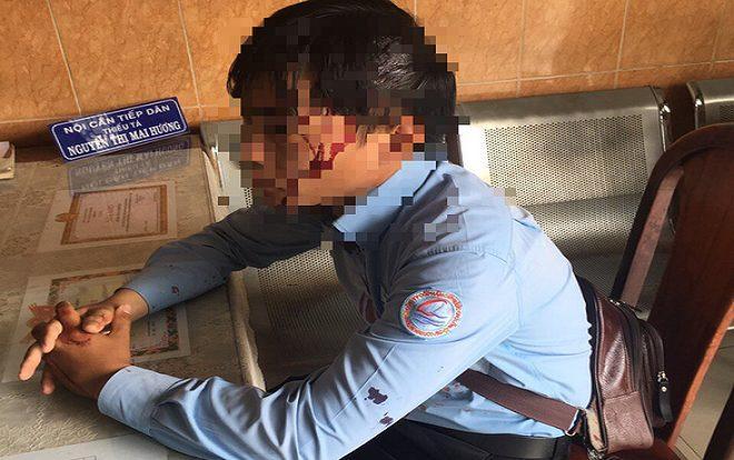 Nhân viên ghi chỉ số nước bị chó cắn, còn bị nam thanh niên dùng đá đánh bể đầu ở Sài Gòn Ảnh 1