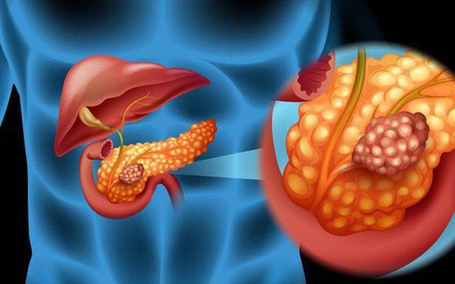 Những dấu hiệu cảnh báo ung thư tuyến tụy bạn đừng nên bỏ qua (P1) Ảnh 1