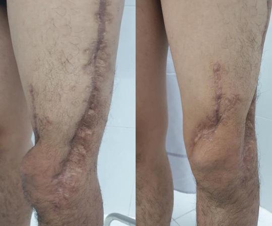 Kỳ tích 7 lần đại phẫu cứu chân của sinh viên khỏi bị cắt cụt Ảnh 1