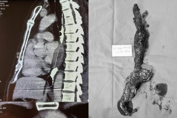 Khó nuốt khi ăn, người đàn ông Thái Bình phát hiện ung thư di căn Ảnh 2