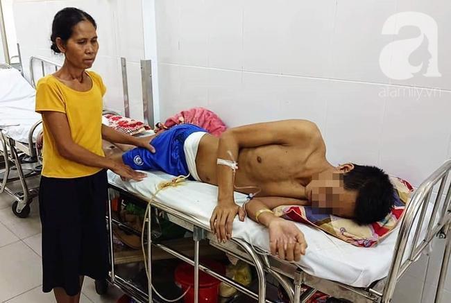 Mẹ nghèo bất lực nhìn con trai bị tai nạn nặng nề, nguy cơ phải đoạn chi mà không làm được gì Ảnh 2