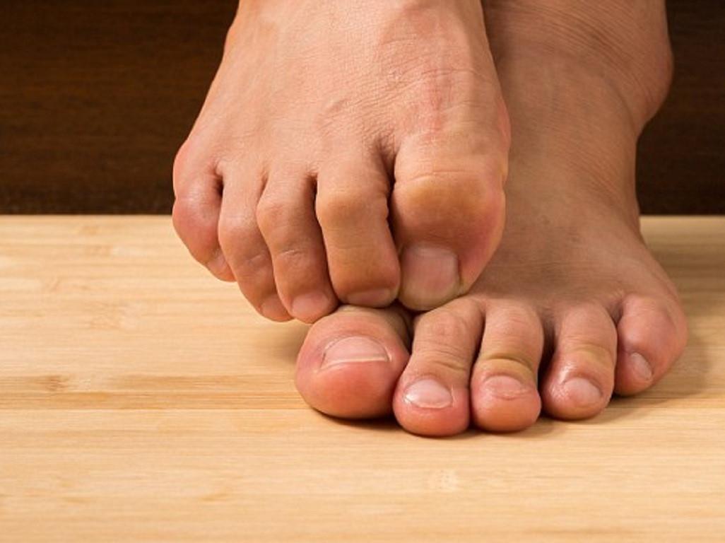 Bị cụt cả 5 ngón tay, người đàn ông được cấy 3 ngón chân vào bàn tay Ảnh 1