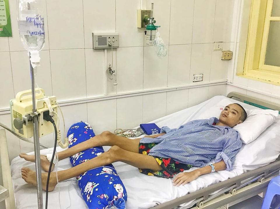 Chia sẻ với 'nỗi đau' của cậu bé 15 tuổi nhiễm nấm phổi xâm lấn nặng Ảnh 1