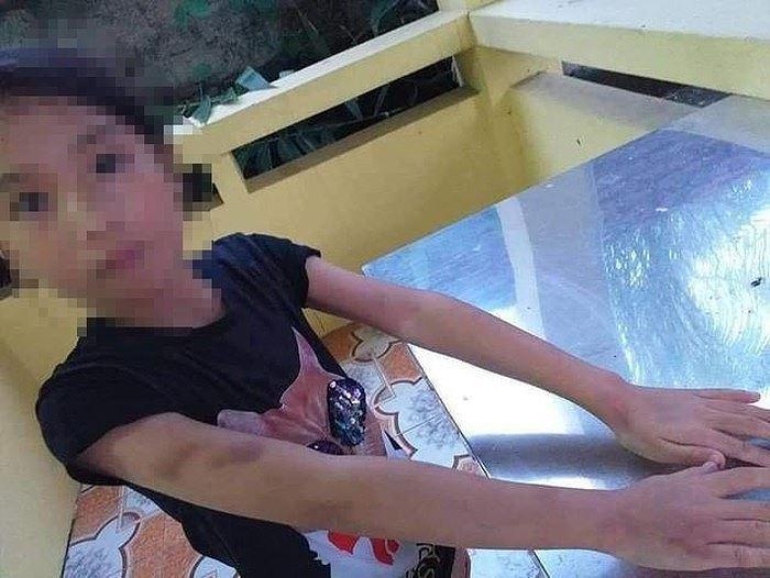 Bé gái 9 tuổi bị cô giáo dạy thêm đánh bầm mặt Ảnh 2