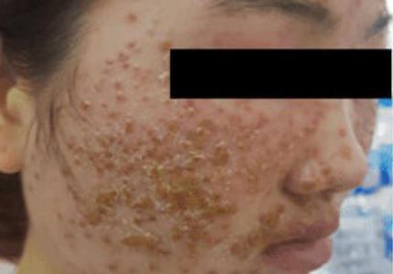 Thiếu nữ 'chết lặng' vì mặt sùi như tổ ong sau 2 lần dùng bột rửa mặt mua online Ảnh 1