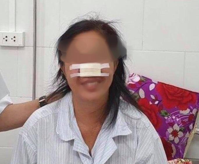 Nữ bệnh nhân bị 'vi khuẩn ăn thịt người' Whitmore 'ăn' vẹt cánh mũi Ảnh 1
