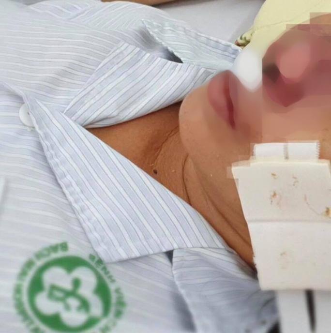 Nữ bệnh nhân bị 'vi khuẩn ăn thịt người' Whitmore 'ăn' vẹt cánh mũi Ảnh 2