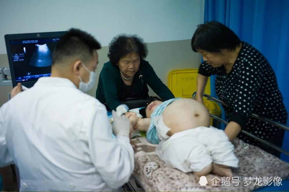 Bà mẹ 'búp bê sứ' cao 89cm mạo hiểm sinh con Ảnh 3