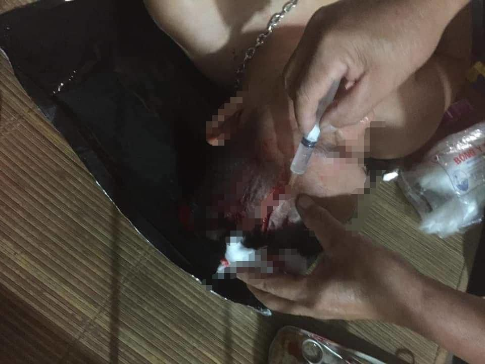Đang ngồi uống nước, nam thanh niên bị 4 đối tượng đi ô tô đến chém
