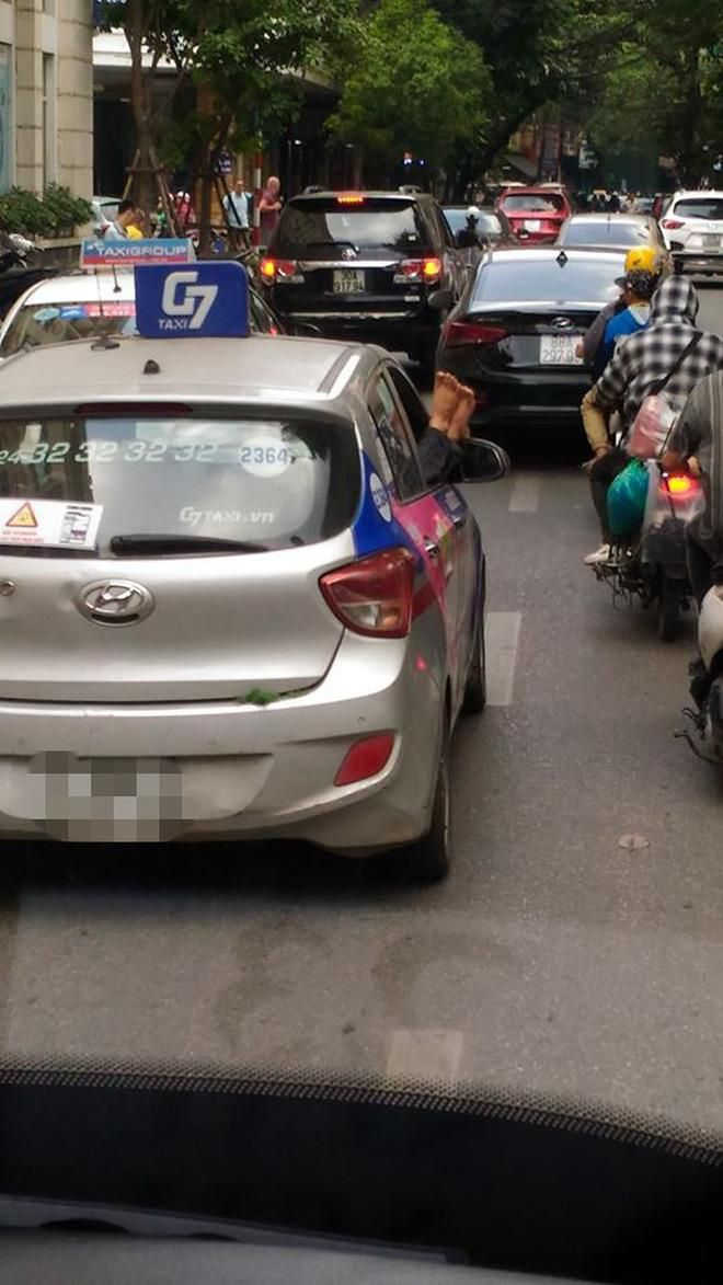 Đôi chân xấu xí thò ra từ cửa xe taxi trên phố Hà Nội khiến nhiều người tránh xa Ảnh 2