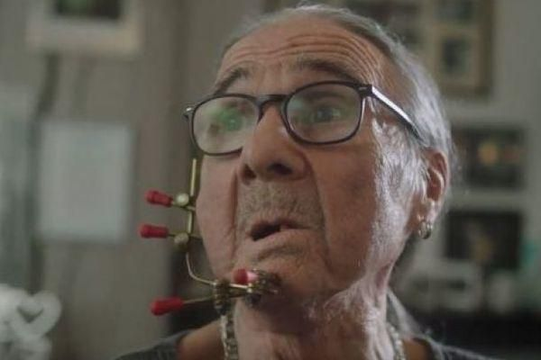 Người đàn ông bị biến dạng khuôn mặt sau 54 năm hút thuốc Ảnh 1