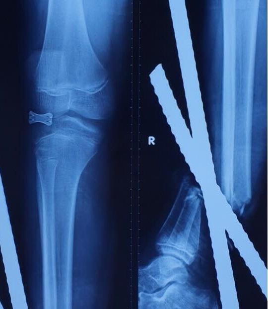 Chạy xe máy đâm vào xe ba gác, bé trai 12 tuổi phải cắt cụt chân Ảnh 2