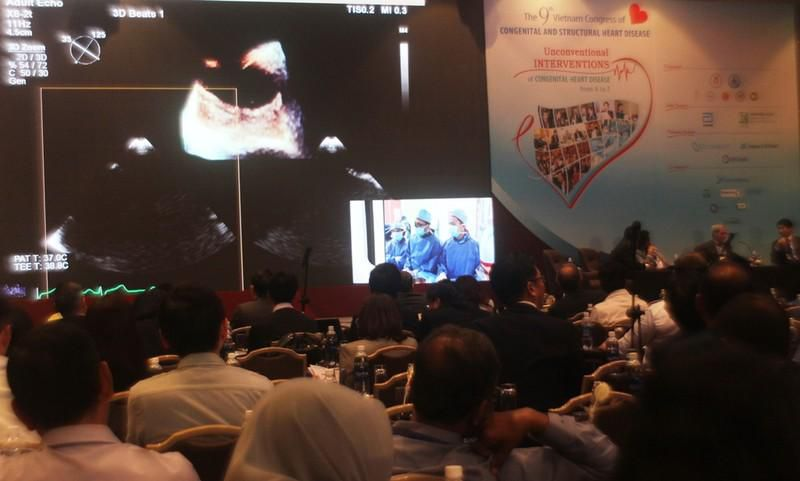 Bác sĩ Việt Nam trình diễn can thiệp tim với thế giới Ảnh 2