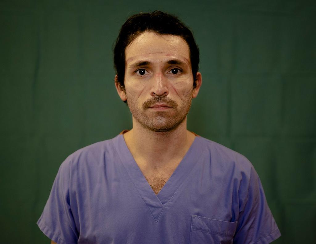 Dấu vết cuộc chiến chống virus hằn sâu trên gương mặt bác sĩ Italy Ảnh 6
