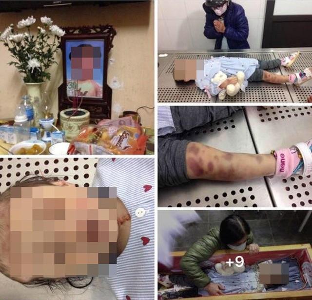Vụ bé gái 3 tuổi tử vong: 'Tôi đã chứng kiến một vụ hãm hại thiên thần...' Ảnh 1
