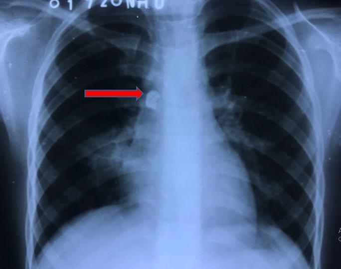Nhổ răng sâu, răng văng luôn vào đường thở khiến bé gái phải nhập viện Ảnh 1