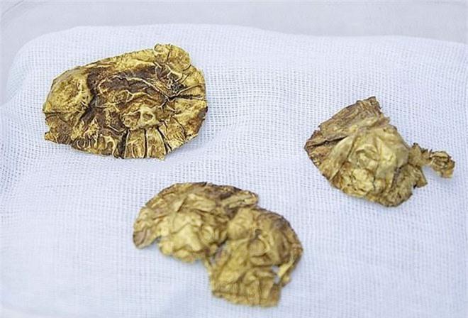 Đào gò đất, phát hiện kho báu 2.800 năm Ảnh 1