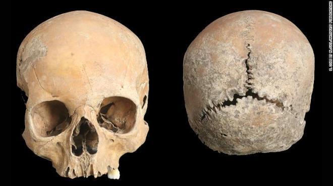 Ám ảnh hộp sọ thiếu nữ cổ đại bị cắt mũi, môi, gọt da đầu Ảnh 1