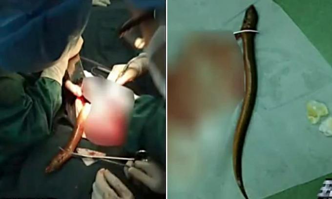 Suýt mất mạng vì nhét con lươn vào hậu môn để chữa táo bón Ảnh 1