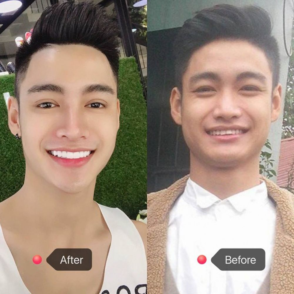 Sự khác biệt sau khi phẫu thuật thẩm mỹ