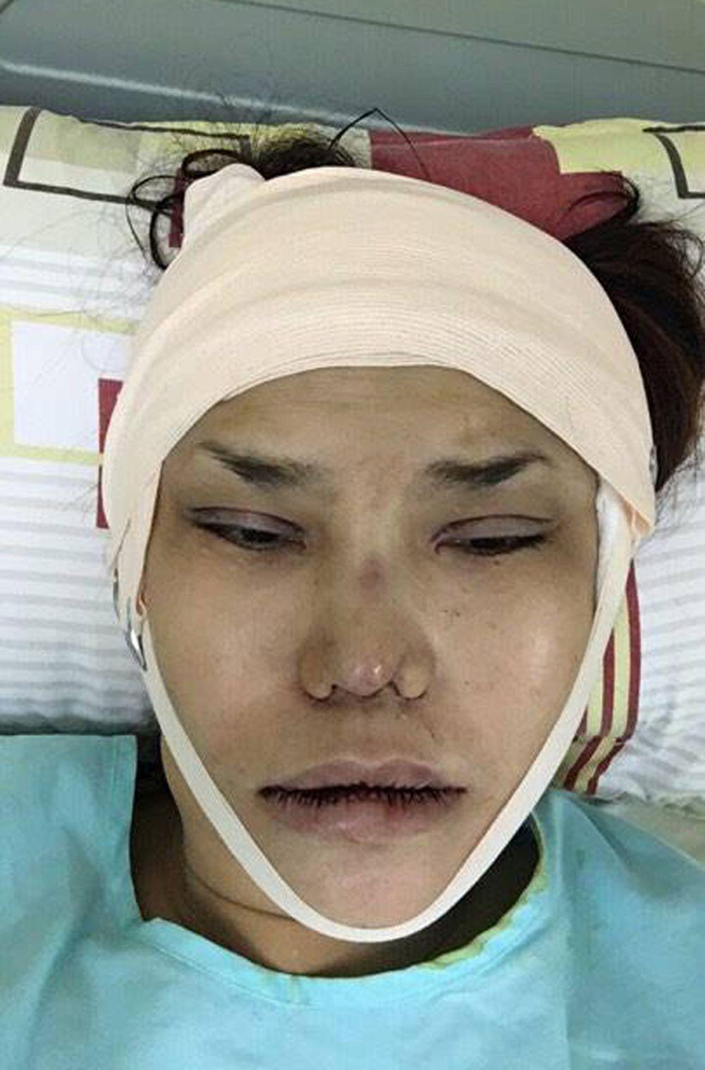 Hình Ảnh Băng Bó Chằng Chịt Trên Bàn Phẫu Thuật Được Cindy Thái Tài Chia  Sẻ. Riêng Chiếc Mũi Đã Từng Được Người Đẹp Chuyển Giới Chỉnh Sửa 5 Lần.