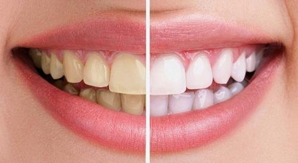 Kết quả hình ảnh cho răng ố vàng